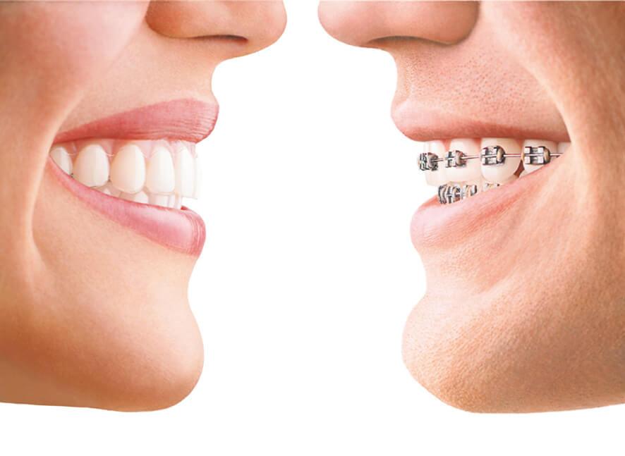 tipos de ortodontia e como funcionam seus tratamentos